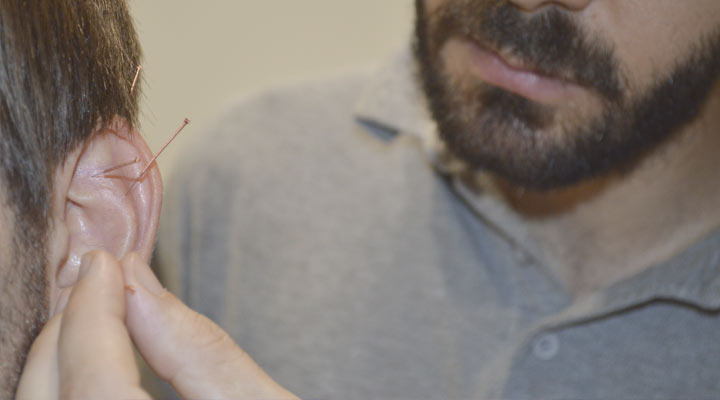 medicina-tradicional-china-acupuntura
